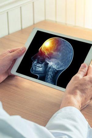 Seattle-Brain-Injury-Attorney